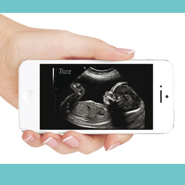 Ultrasounds delivered by text or email.