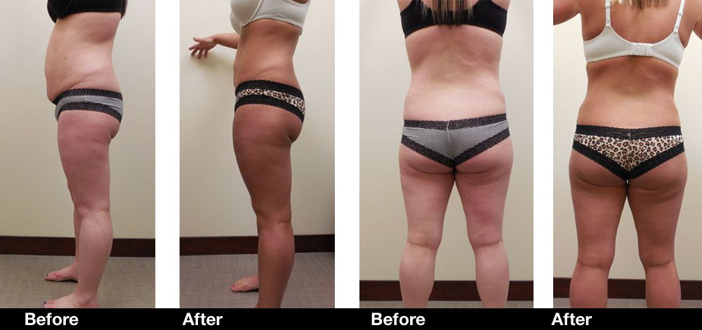 Before And After Photos Smartlipo Triplex